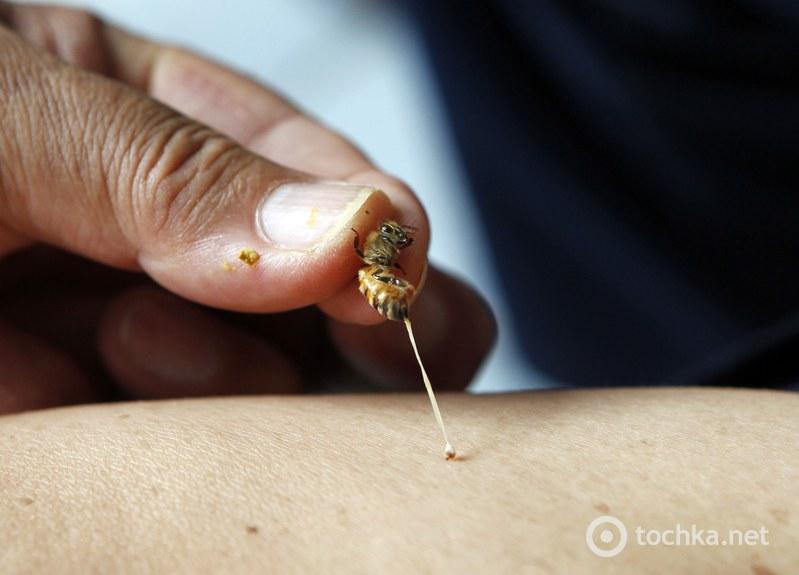 Пчелиный яд снимает боль и устраняет отеки