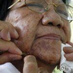 Врач ставит пчелу на лицо женщине, у которой аллергия на укусы пчел