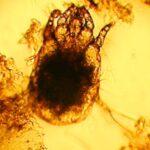 Одноклеточный паразит нозема