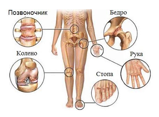 Медовый компресс на суставы артроз коленных суставов лечение тибетской медицины