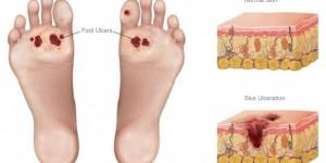 Диабетические язвы на ногах лечатся мёдом